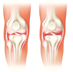 Arthritis treatment in Virginia