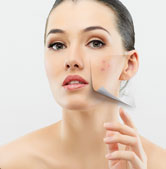 Chemical Peels in Richmond Virginia