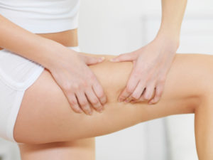 Different Treatment Types for Removing Cellulite