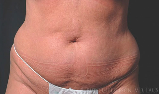 After CoolSculpting photo in 9930 Independence Park Dr, Suite 101, Richmond, VA, 23233