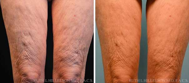 Thermage - Body Contouring Before and After Photos in Richmond, VA, Patient 5081