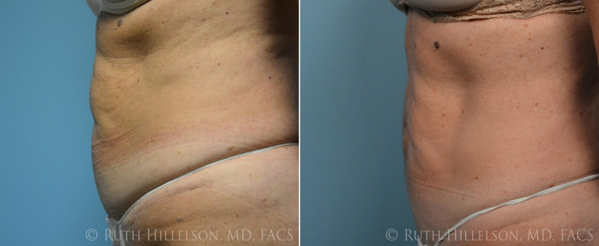 Thermage - Body Contouring Before and After Photos in Richmond, VA, Patient 5108