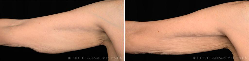 Thermage - Body Contouring Before and After Photos in Richmond, VA, Patient 5092