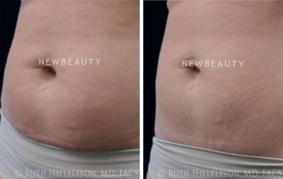 Thermage - Body Contouring Before and After Photos in Richmond, VA, Patient 5104