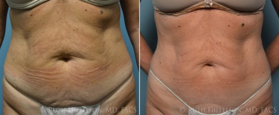Thermage - Body Contouring Before and After Photos in Richmond, VA