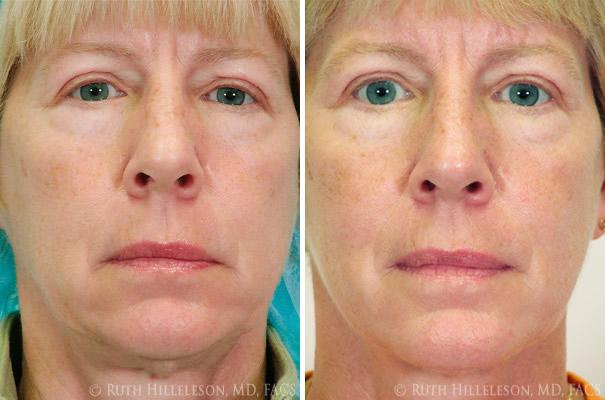 Thermage - Skin Tightening Before and After Photos in Richmond, VA, Patient 5021