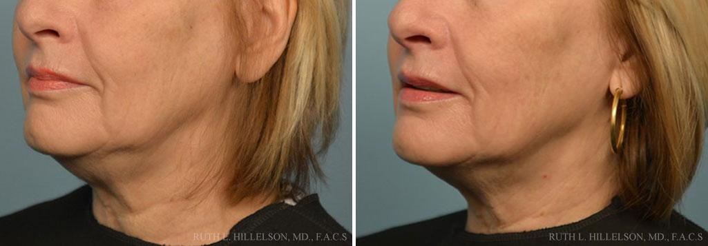 Before and After Photos in , , Thermage Treatments in Richmond, VA