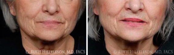 Thermage - Skin Tightening Before and After Photos in Richmond, VA
