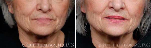 Thermage - Skin Tightening Before and After Photos in Richmond, VA, Patient 5056