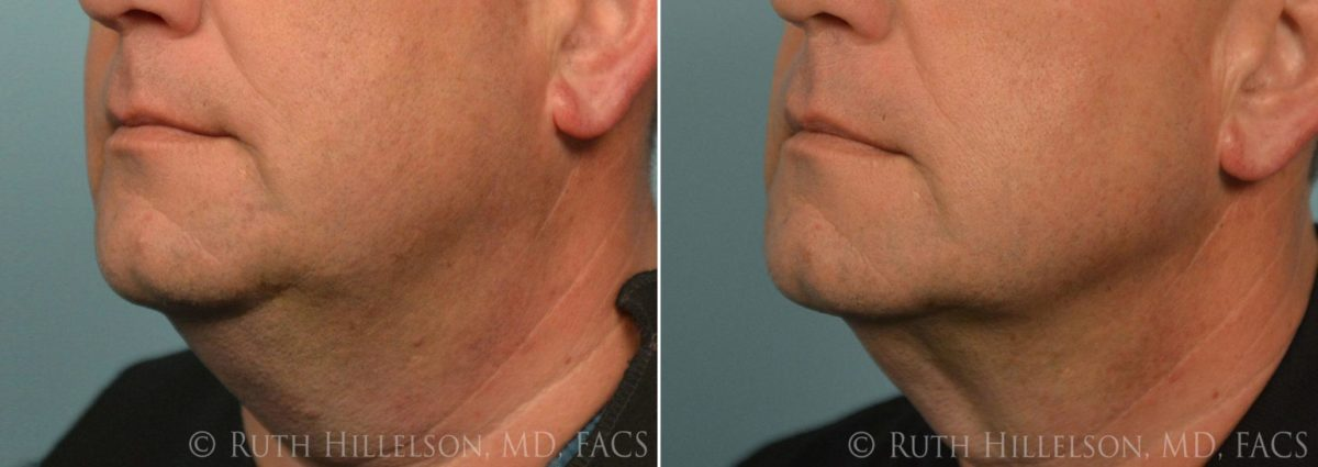 Thermage - Skin Tightening Before and After Photos in Richmond, VA, Patient 5060