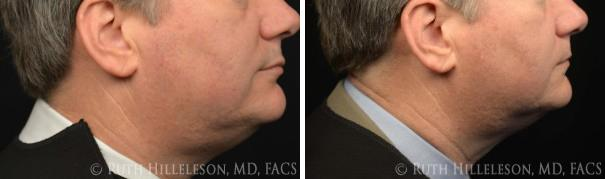 Thermage - Skin Tightening Before and After Photos in Richmond, VA, Patient 5028