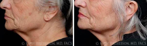 Thermage - Skin Tightening Before and After Photos in Richmond, VA, Patient 5035