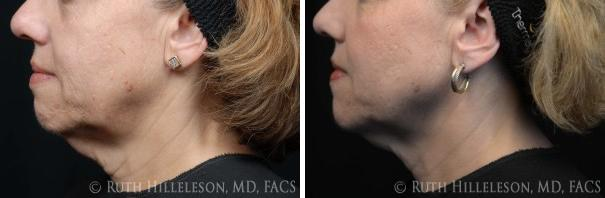 Thermage - Skin Tightening Before and After Photos in Richmond, VA, Patient 5048