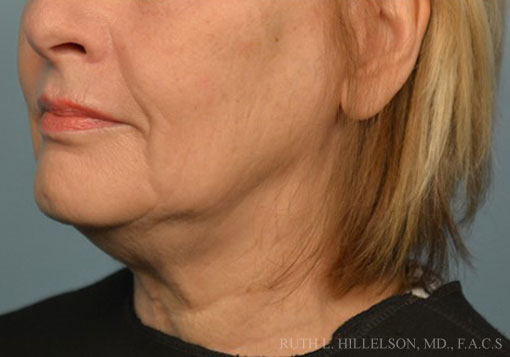Before Thermage - Skin Tightening photo in 9930 Independence Park Dr, Suite 101, Richmond, VA, 23233