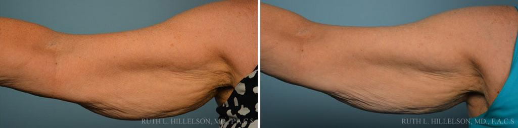 TriPollar RF Before and After Photos in Richmond, VA, Patient 5126