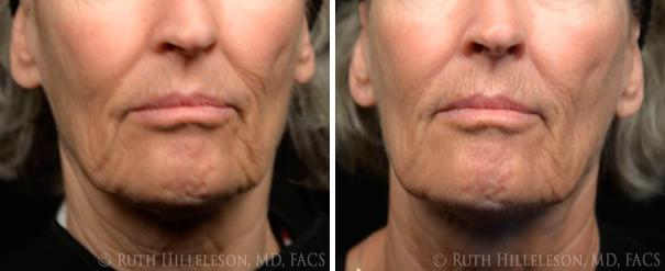 TriPollar RF Before and After Photos in Richmond, VA, Patient 5128
