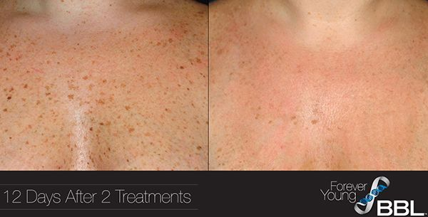 BBL Treatments Before and After, Richmond, VA