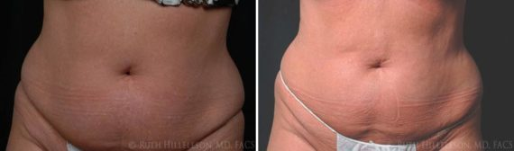 CoolSculpting Before and After Photos in Richmond, VA