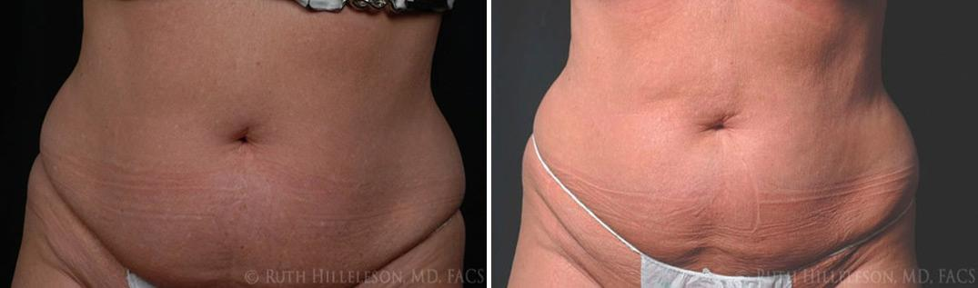 CoolSculpting Before and After Photos in Richmond, VA, Patient 5006