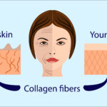 What is Collagen Remodeling?