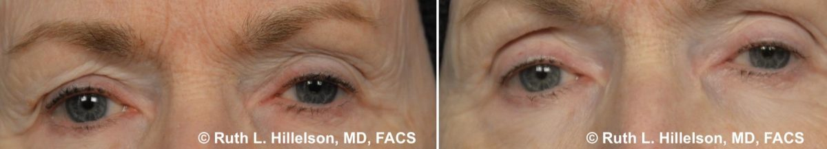 Thermage - Skin Tightening Before and After Photos in Richmond, VA, Patient 5017
