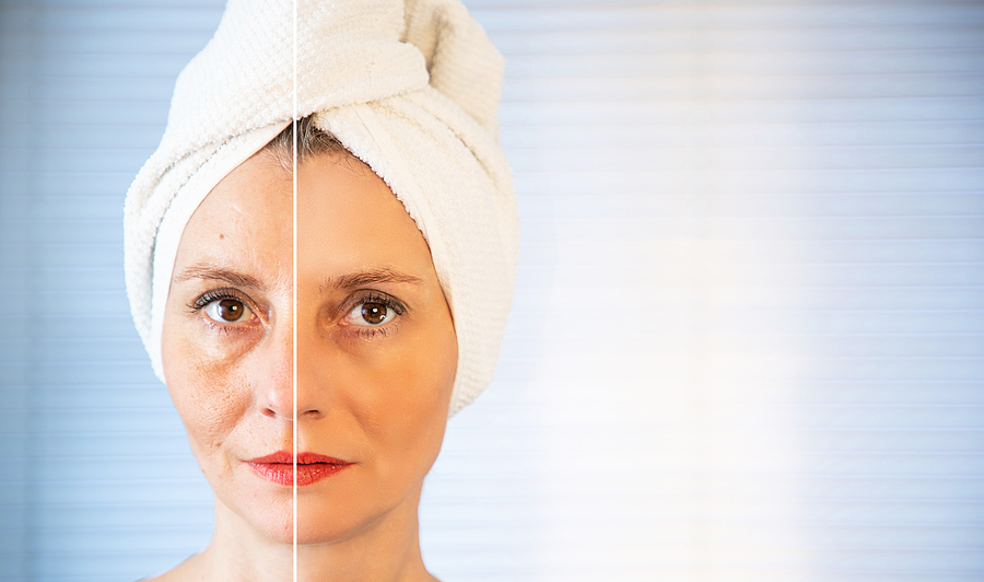 happy woman after beauty treatment before/after shots
